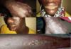 Dermatoses chez des pêcheurs: les détails du rapport d'investigation