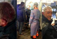 Italie – Folie dans un métro : Un Sénégalais envoie 4 personnes à l'hôpital